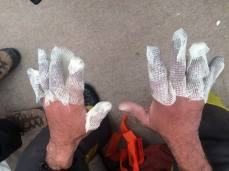 Dressing frostbitten fingers at Basecamp